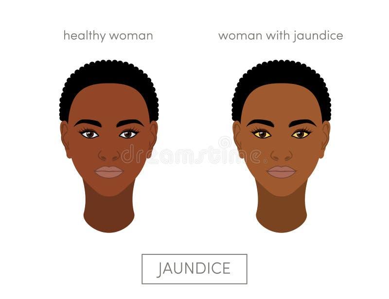 Jaundice concept royalty free illustration