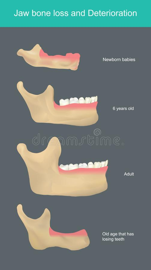 Free Jaw Bone Loss And Deterioration. Illustration. Stock Image - 164403571