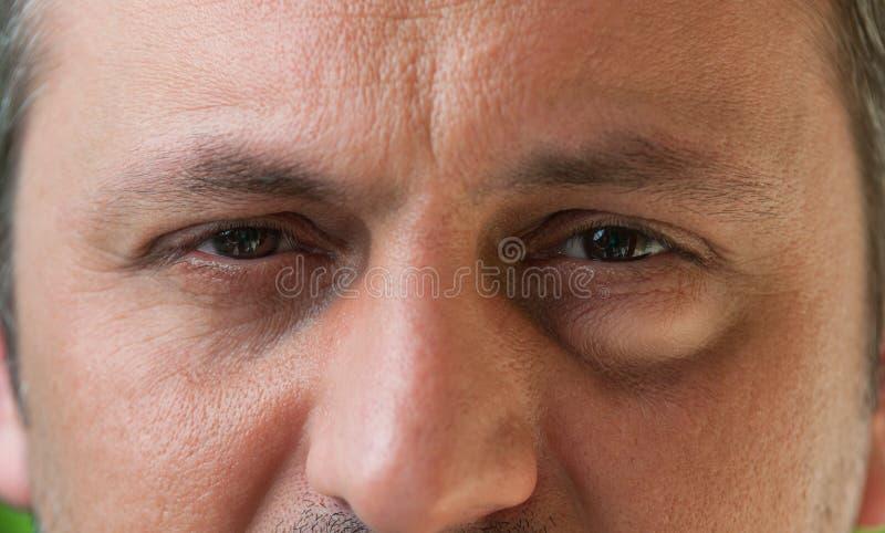 Jeden oko z conjunctivitis zdjęcia stock
