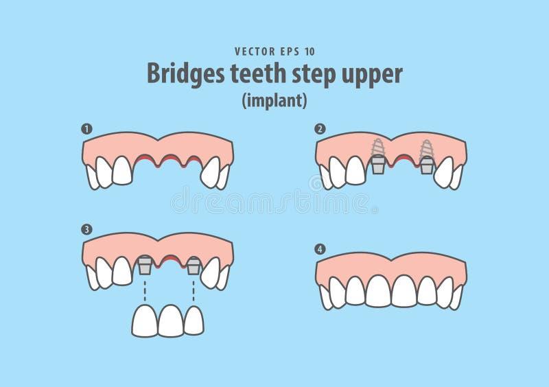 Jette un pont sur le vecteur supérieur d'illustration d'implant d'étape de dents sur b bleu illustration libre de droits