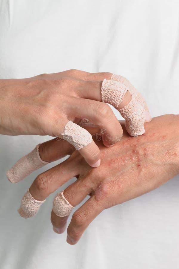 Jeuken veroorzaakt door allergieën, huidvrouwen stock foto