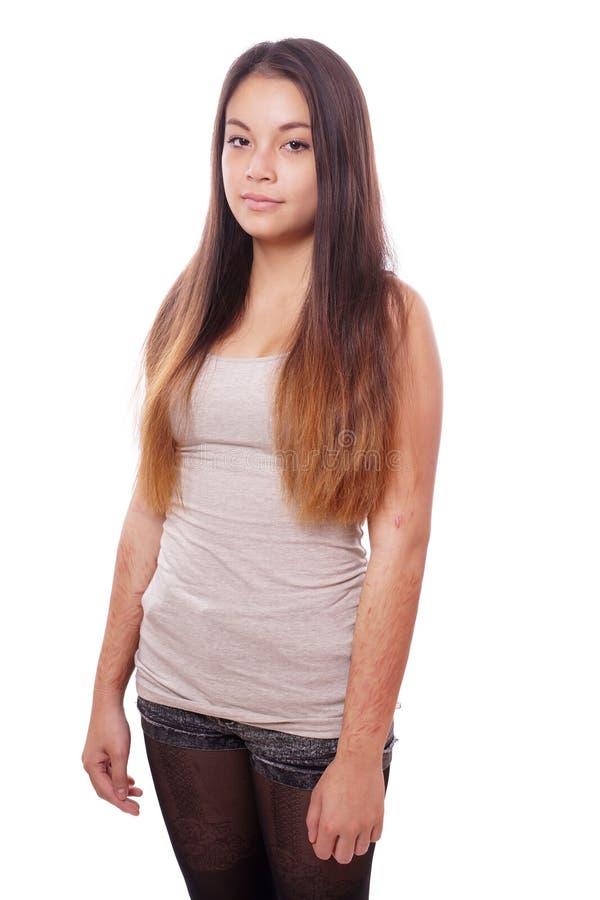 Jeune femme avec des cicatrices d'auto-mal photos stock