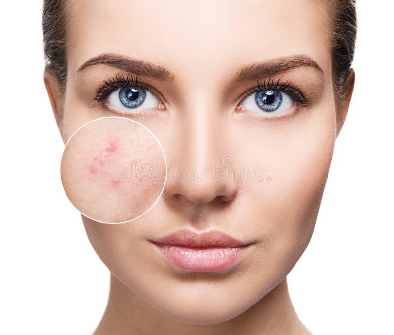 Jeune femme avec la peau d'acné en cercle de bourdonnement photo stock