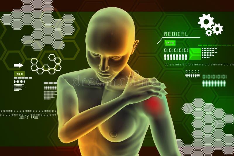 Jeune femme touchant son coude douloureux illustration libre de droits