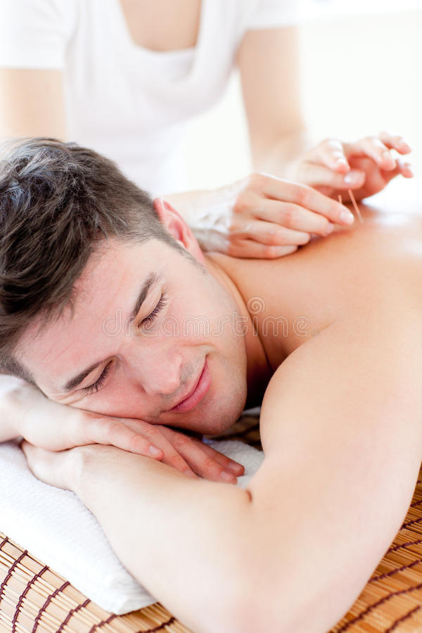 Jeune homme avec du charme dans une thérapie d'acuponcture images libres de droits