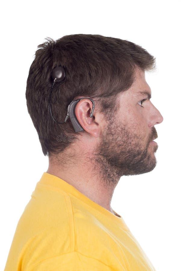 Jeune homme avec l'implant cochléaire images libres de droits