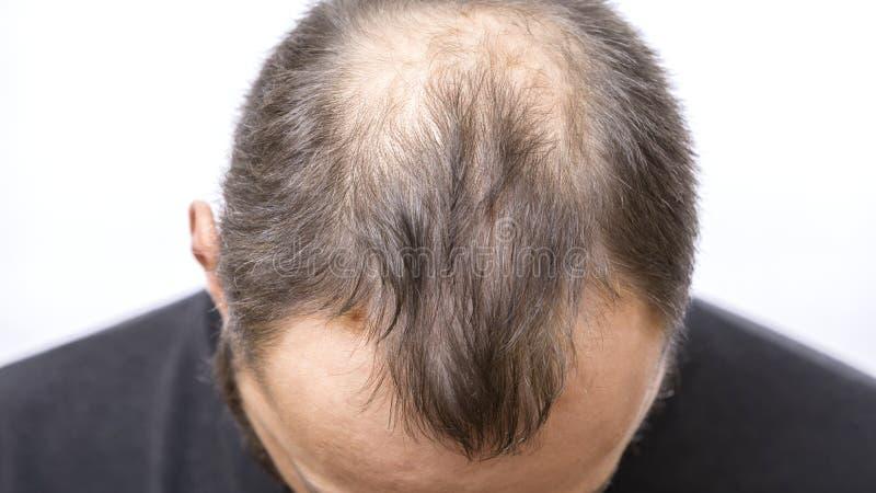 Jeune homme presque chauve, probl?me de perte des cheveux photos libres de droits