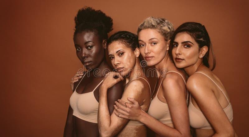 Jeunes femmes avec différents types de peau photos stock