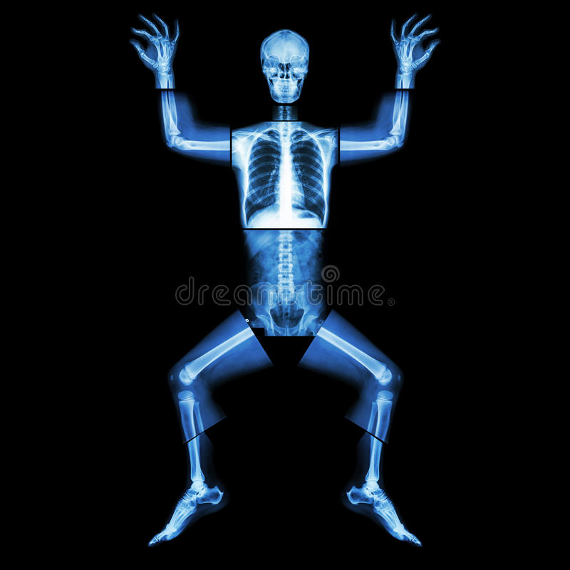 Jigsaw human x-ray ( whole body : head skull face neck spine shoulder arm elbow joint forearm wrist hand finger chest thorax heart. Lung rib abdomen back pelvis royalty free stock photo