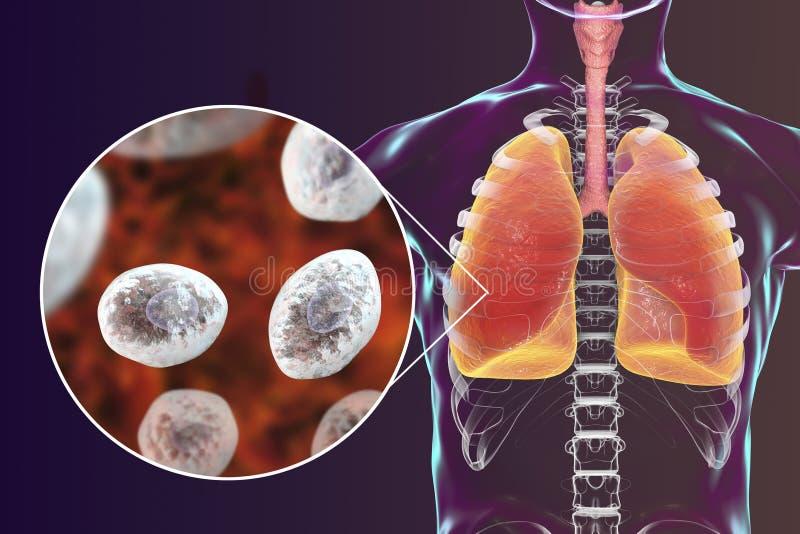 Jirovecii o carinii de Pneumocystis en pulmones humanos fotos de archivo