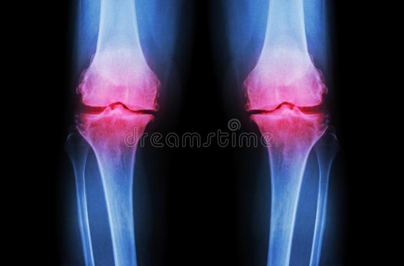 Joelho da osteodistrofia (joelho do OA) Raio X do filme ambo espaço da junção do estreito da mostra do joelho (vista dianteira) ( imagem de stock