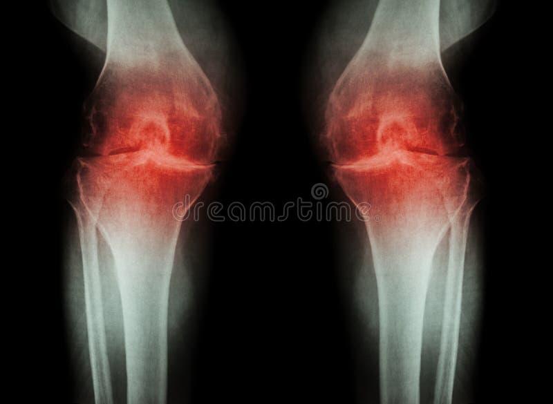 Joelho da osteodistrofia (joelho) do OA (raio X do filme ambo joelho com artrite da articulação do joelho: espaço estreito da art imagem de stock royalty free