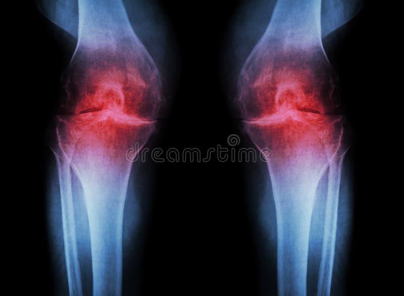 Joelho da osteodistrofia (joelho) do OA (raio X do filme ambo joelho com artrite da articulação do joelho: espaço estreito da art fotos de stock royalty free