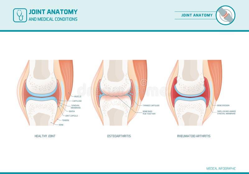 Joint anatomy, osteoarthritis and rheumatoid arthritis infographic vector illustration