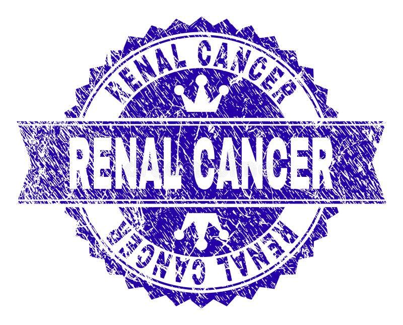Joint RÉNAL texturisé de timbre de CANCER de grunge avec le ruban illustration de vecteur