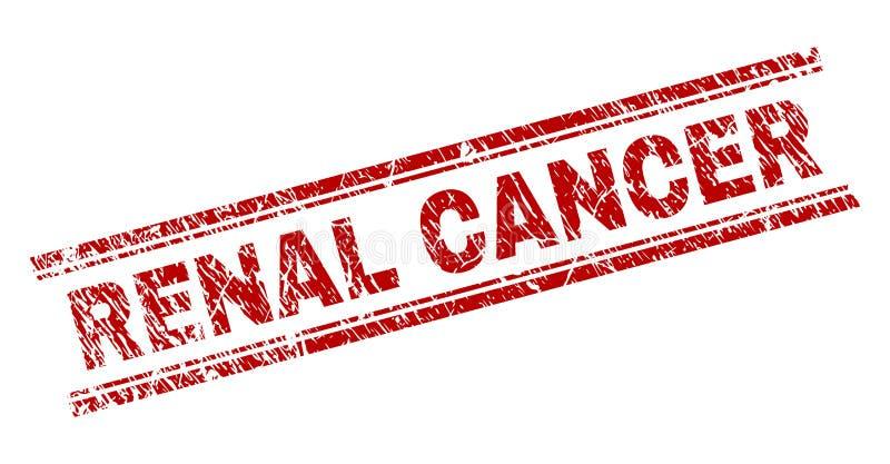 Joint RÉNAL texturisé rayé de timbre de CANCER illustration de vecteur