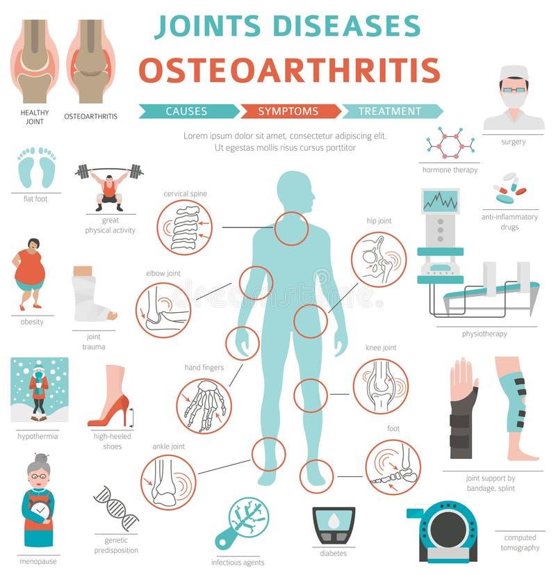 Joints diseases. Arthritis, osteoarthritis symptoms, treatment i stock illustration