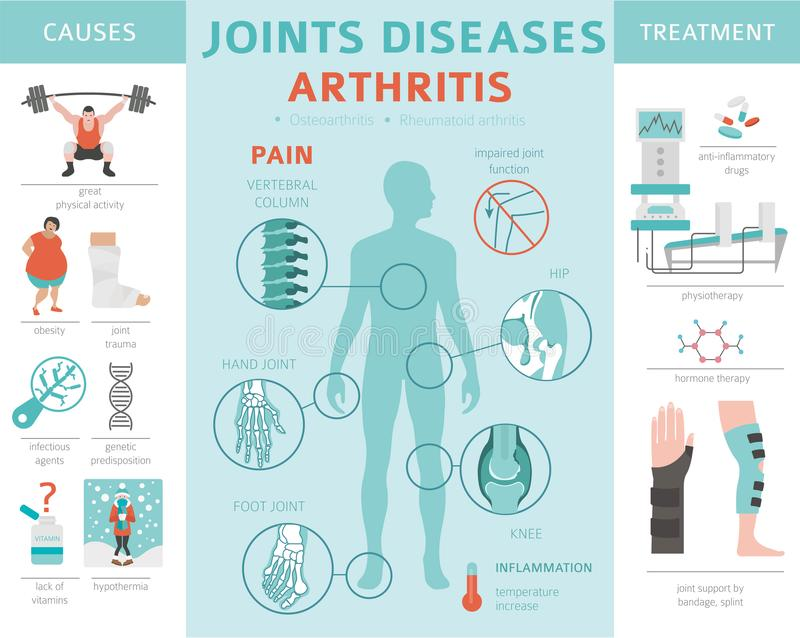 Joints diseases. Arthritis symptoms, treatment icon set. Medical. Infographic design. Vector illustration stock illustration