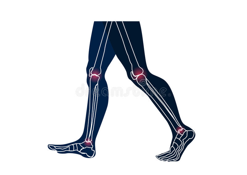 Joints leg injury concept frontal view royalty free illustration