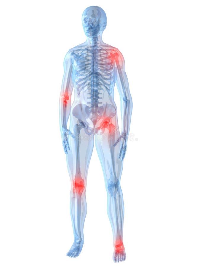 joints smärtsamt stock illustrationer