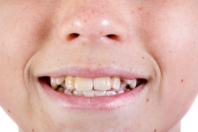 Jong Kaukasisch tiener` s gezicht stock afbeelding