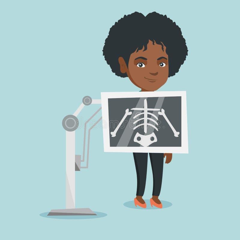 Jonge Afrikaanse vrouw tijdens x ray procedure vector illustratie