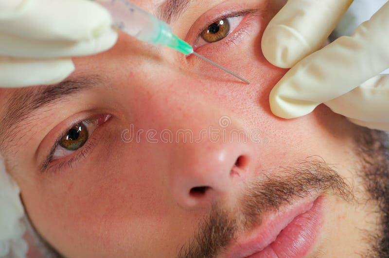 Jonge de close-up bemant gezicht die gezichts kosmetische behandelingsinjecties, artsenhand met de spuit van de handschoenholding royalty-vrije stock afbeeldingen