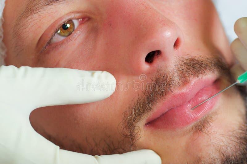 Jonge de close-up bemant gezicht die gezichts kosmetische behandelingsinjecties, artsenhand met de spuit van de handschoenholding stock foto's