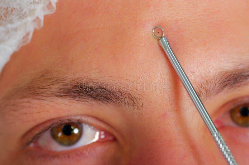 Jonge de close-up bemant gezicht voorbereidingen treffend voor gezichts kosmetische behandeling, arts gebruikend metaalhulpmiddel stock afbeelding