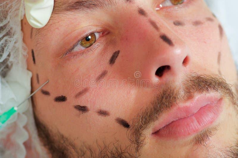 Jonge de close-up bemant gezicht, zwarte die lijnen rond het worden getrokken, die gezichts kosmetische behandelingsinjecties, ar stock fotografie