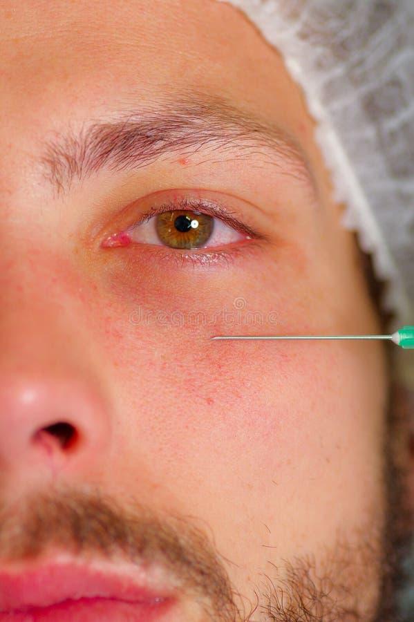 Jonge de close-up bemant half gezicht, die gezichts kosmetische behandelingsinjecties, artsenhand met de spuit van de handschoenh stock fotografie