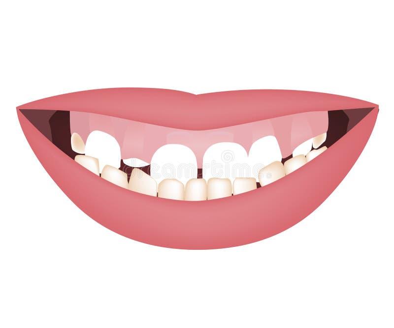 Jonge geitjesmond met een te grote onderkaak en hoge glimlachlijn of kleverige glimlach vóór orthotropics of de orthotropicsbehan vector illustratie