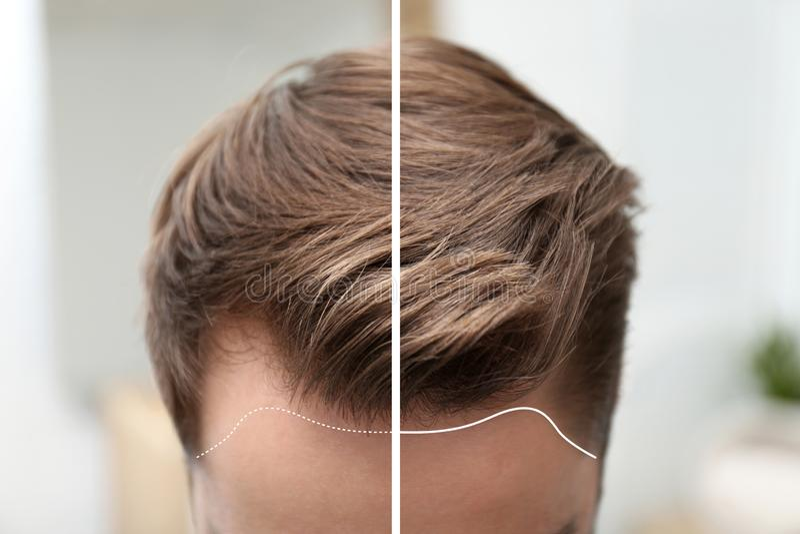 Jonge mens before and after de behandeling van het haarverlies tegen vage achtergrond stock foto's