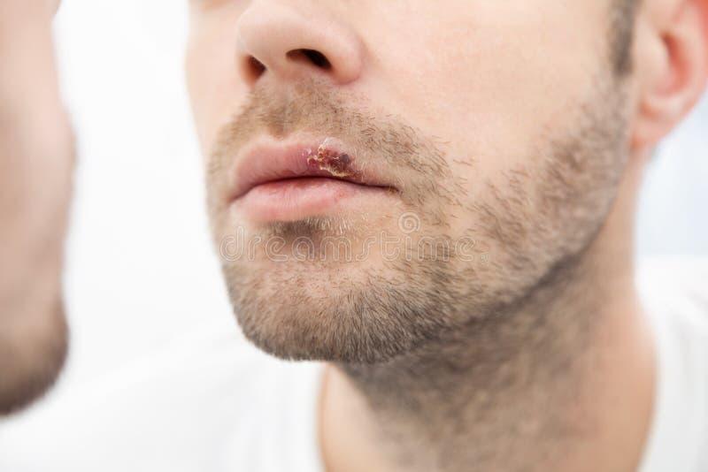 Jonge mens die aan herpes op zijn mond lijden royalty-vrije stock fotografie