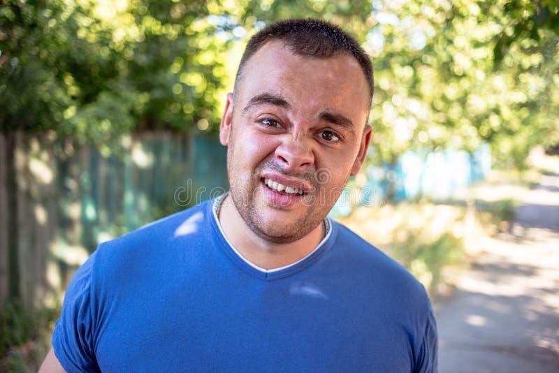 Jonge mens in een blauwe T-shirt met een afgebroken tand royalty-vrije stock foto's