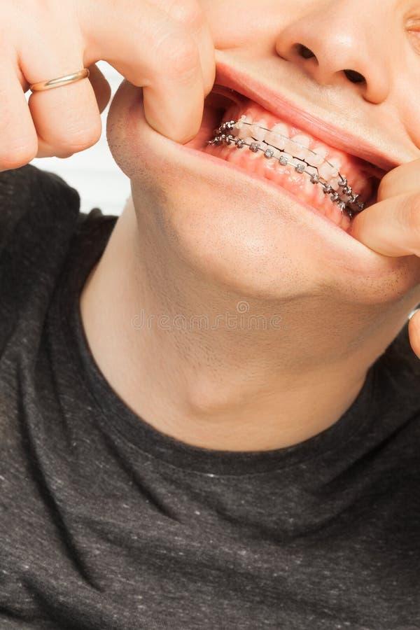 Jonge mens met orthodontische gevallen die pret hebben stock foto