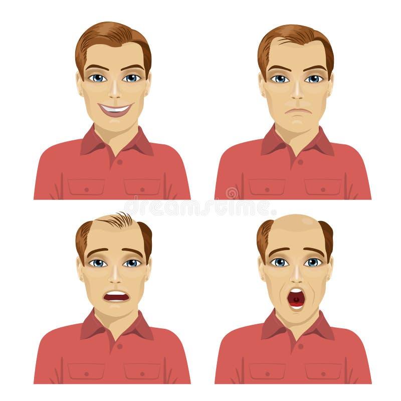 Jonge mens met verschillende stadia van haarverlies vector illustratie