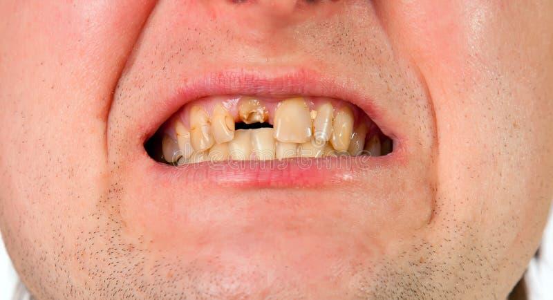 Jonge mensenmond met gebroken tand stock foto