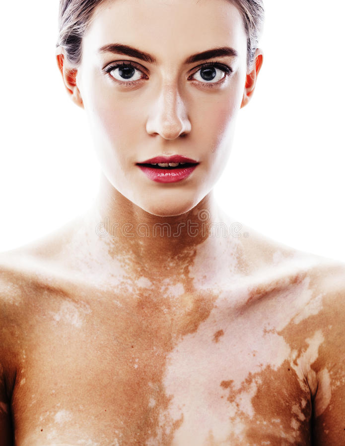 Jonge vrij donkerbruine echte moderne vrouw met dichte omhooggaand van vitiligodesease royalty-vrije stock afbeeldingen