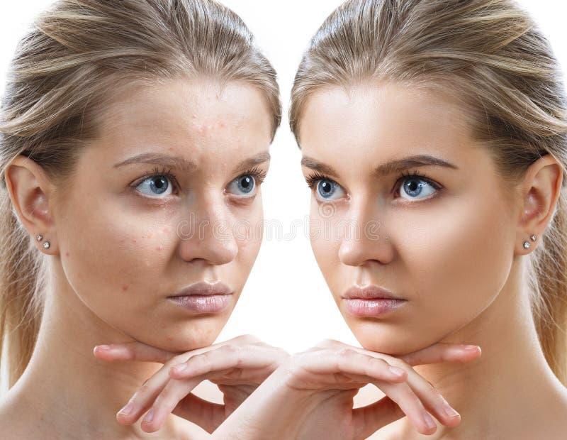 Jonge vrouw before and after huidbehandeling en make-up stock foto's