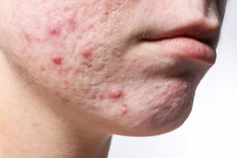 Jonge vrouw met acne op haar gezicht stock afbeelding