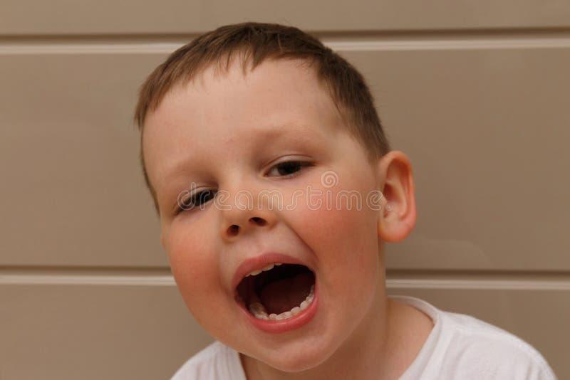 Jongen, kind, in een witte T-shirt geopend zijn mond op onderzoek met een arts een tandarts of een otolaryngoloog bevestigt beet  royalty-vrije stock foto's