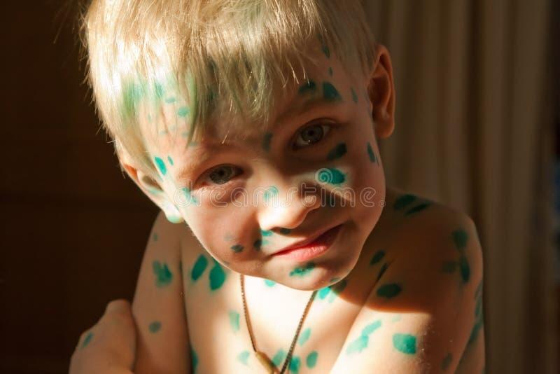 Jongen met groene punten van waterpokken stock foto