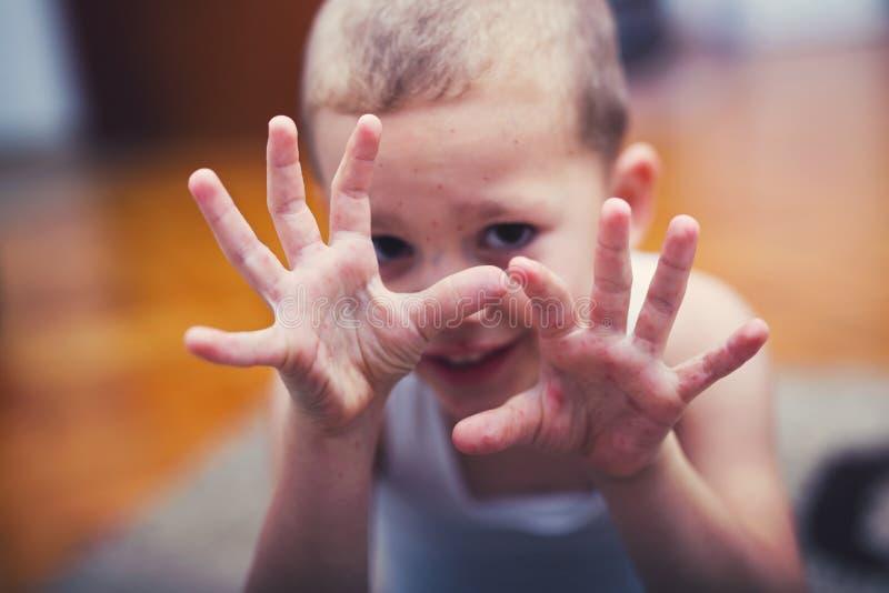 Jongen met symptomenhand, mond- en klauw ziekte stock fotografie