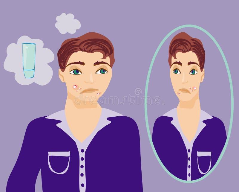 Jongen in puberteit met acne stock illustratie