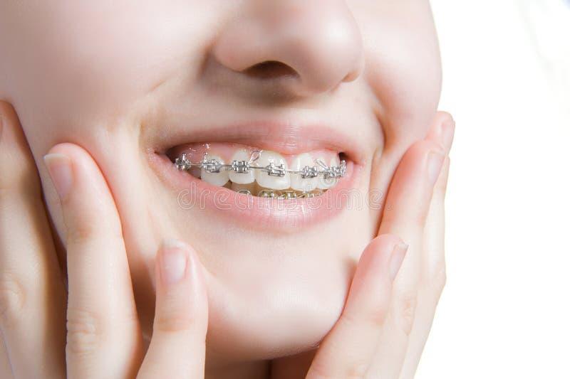 Jovem mulher bonita com cintas dos dentes fotos de stock