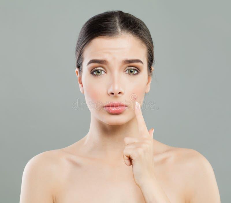 Jovem mulher com espinha da acne Problema de pele fêmea fotografia de stock royalty free