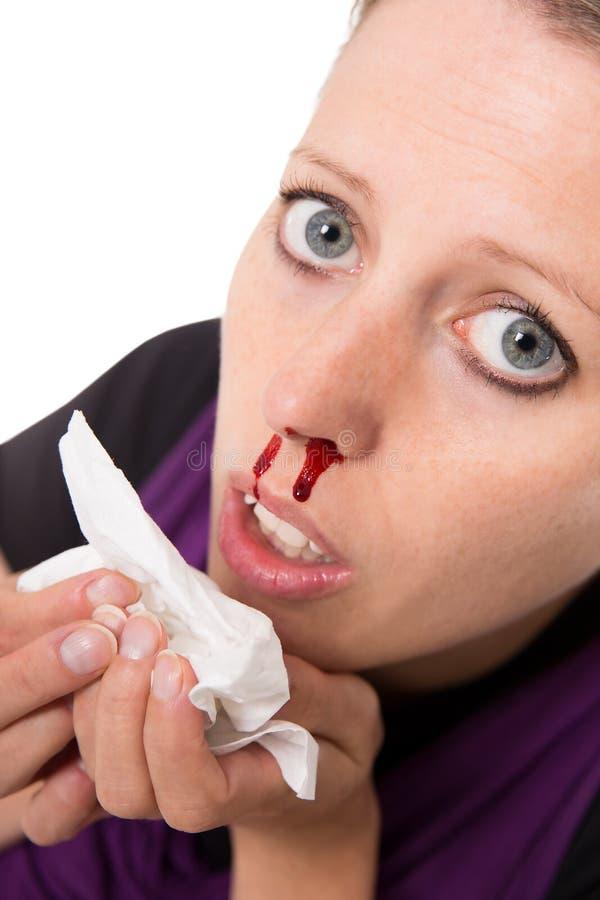 Jovem mulher com o nariz do sangramento isolado no branco imagens de stock