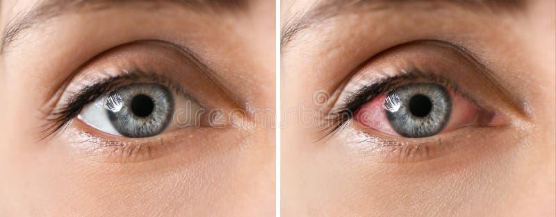 Jovem mulher com olhos bonitos, close up foto de stock