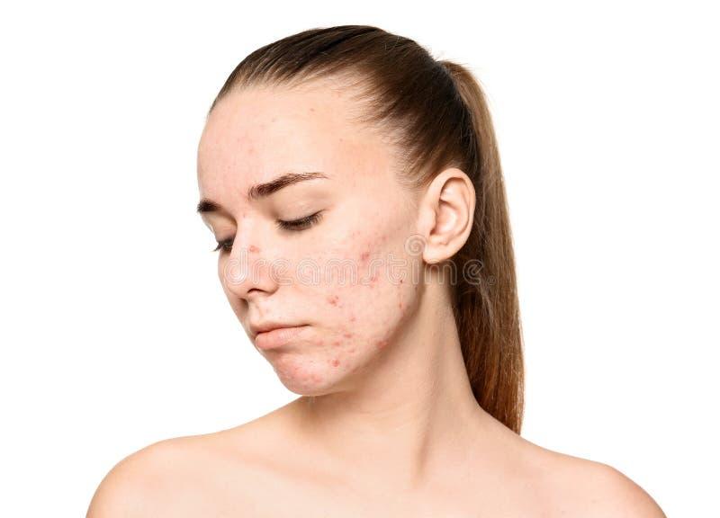 Jovem mulher com problema da acne foto de stock